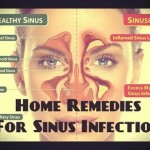treat_sinus_infections_naturally